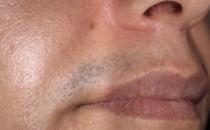 Преди лазерна епилация (горна устна, Dr. Nemeth, Florida, USA)