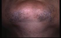Преди и след лазерна епилация - брадичка