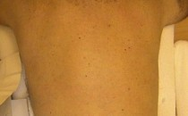 След лазерна епилация - гръб