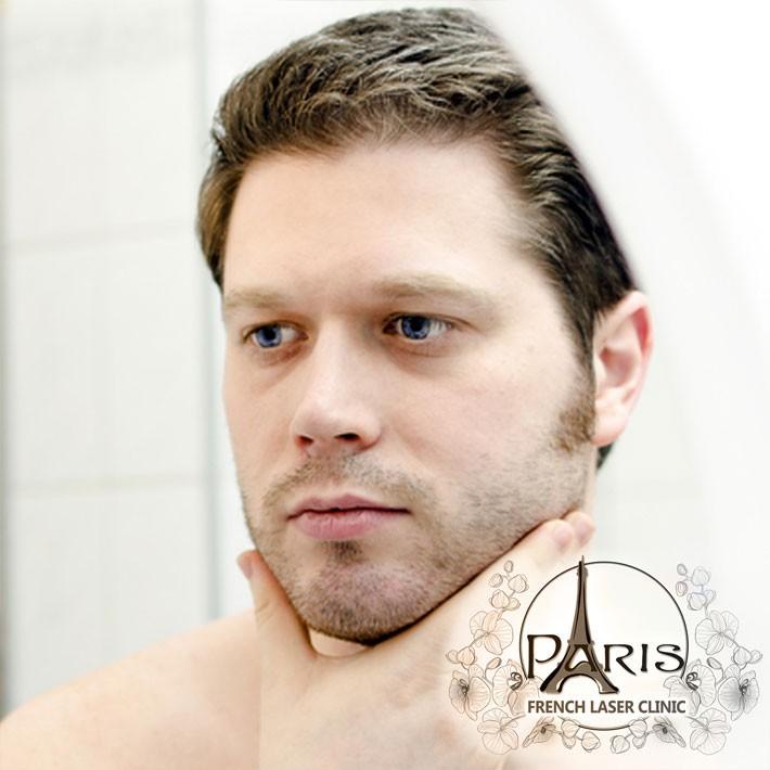 Епилация на лице за мъже