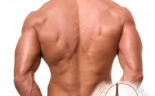Лазерна епилация на гръб