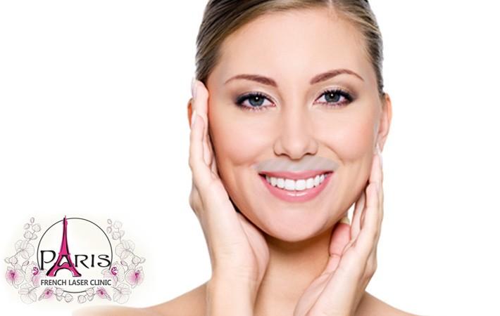 Лазерна епилация на горна устна (мустак)