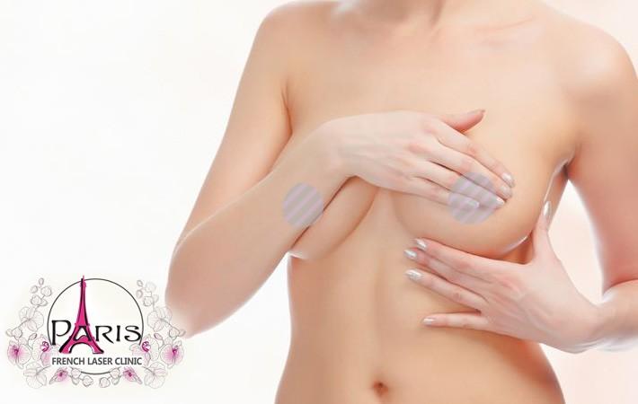 Лазерна епилация на гърди (около зърнарта) в Лазер Клиник ПАРИЖ, Варна