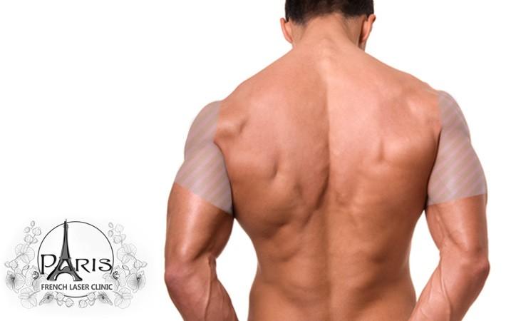 Лазерна епилация на рамене в Лазер Клиник ПАРИЖ, Варна