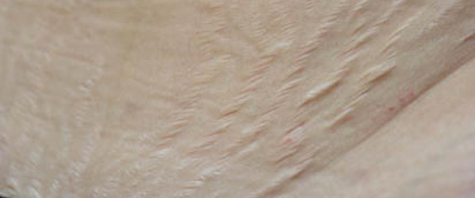 Стрии - преди Карбокситерапия