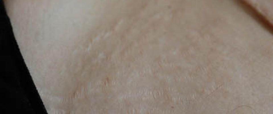 Стрии - 1 месец след 3-тата процедура Карбокситерапия