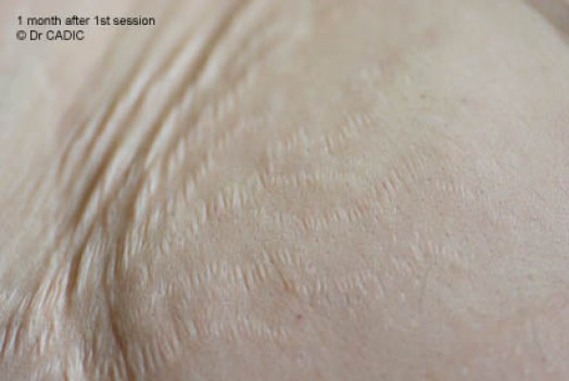 Стрии - 1 месец след 1-вата процедура Карбокситерапия