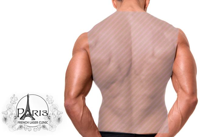 Лазерна епилация на гръб в Лазер Клиник ПАРИЖ, Варна