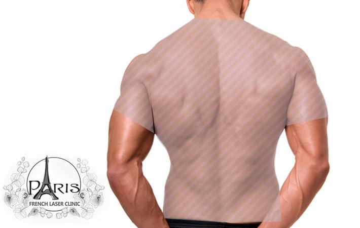Лазерна епилация на гръб и рамене в Лазер Клиник ПАРИЖ, Варна