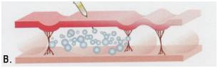 2-karboksiterapia-strii-po-korema-hansha-bedrata-laser-clinic-paris