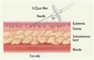 Карбокситерапия за заличаване на стрии