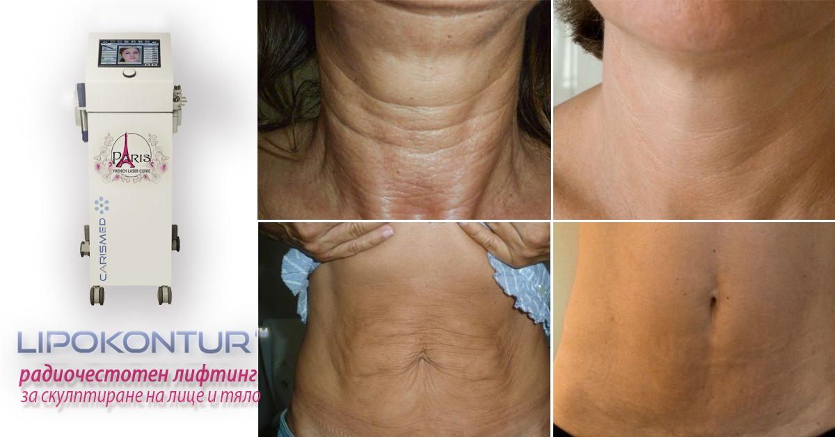 LIPOKONTUR MD-  РАДИОЧЕСТОТЕН ЛИФТИНГ с 3 енергии за скулптуриране на лицето и тялото - за борба с бръчките, целулита, стриите, за стягане и повдигане на кожата, отслабване (намаляване на обиколката)