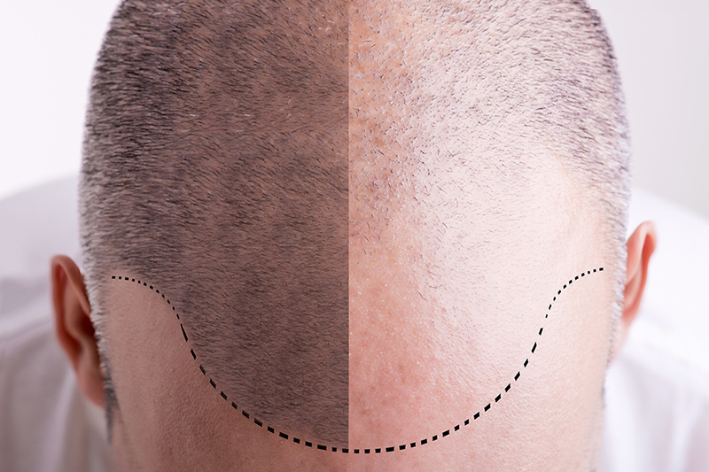 Оплешивяване при мъже и жени - мезотерапия Promoitalia Hair+ revitalizing - Лазер Клиник Париж
