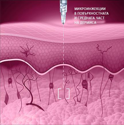 мезотерапия redensity-I
