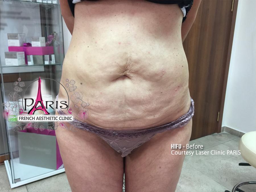 Преди HIFU корем-стягане на кожата и отслабване-Лазер Клиник Париж