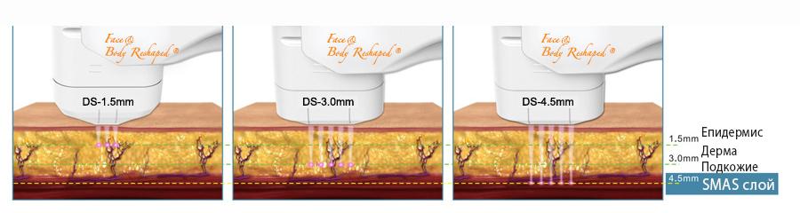 HIFU Face Reshaped® разполага с 3 накрайника - НЕХИРУРГИЧЕН SMAS ЛИФТИНГ НА ЛИЦЕ с високо интензивен фокусиран ултразвук Хайфу (HIFU) - в Лазер Клиник Париж - Варна