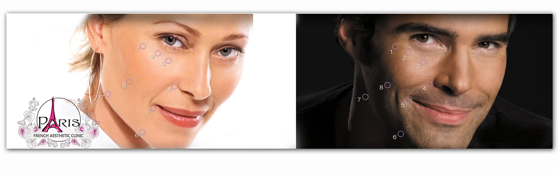 MD Codes™ Juvéderm Voluma VYCROSS® Allergan - Лазер Клиник ПАРИЖ, гр. Варна
