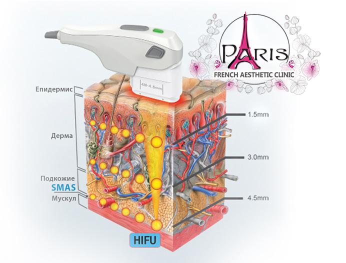 hifu неоперативен MAS на тяло с Високо интензивен фокусиран ултразвук Хайфу (HIFU) - Лазер Клиник Париж, Варна