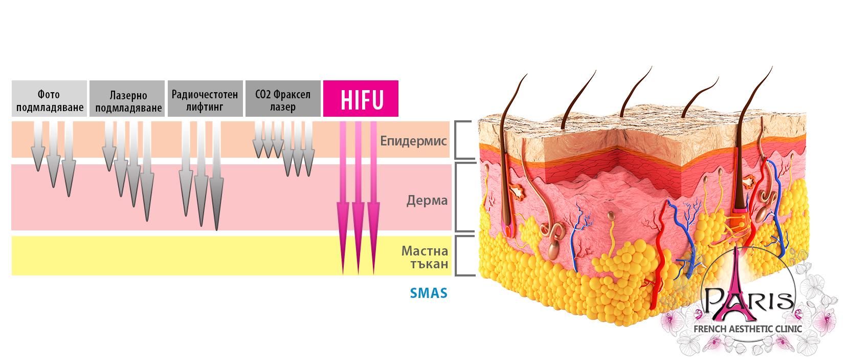 Дълбочина на проникване - HIFU лифтинг, радиочестота, лазер, фраксел лазер, фотоподмладяване - Лазер Клиник Париж - гр. Варна