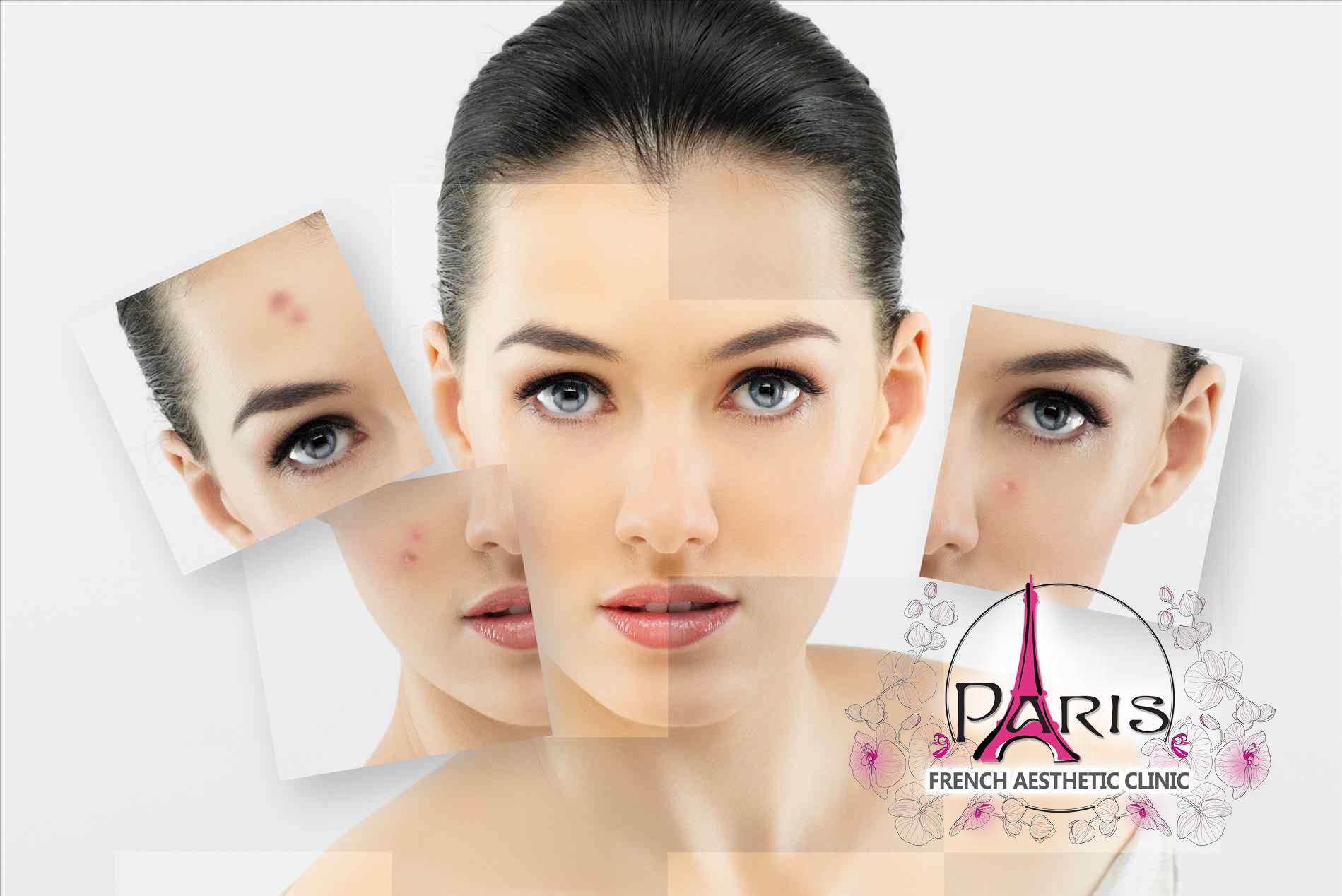 Лазерно лечение на акне в Лазер Клиник Париж - Варна