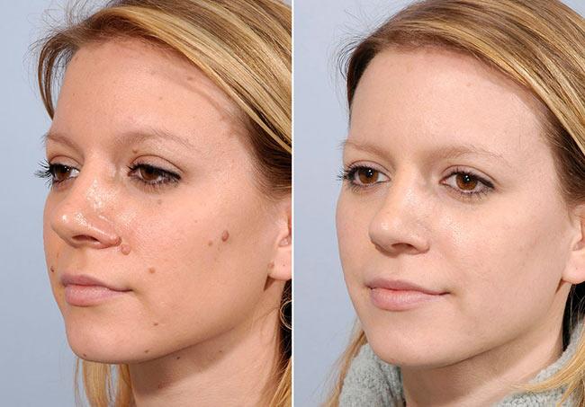Бързо, ефективно, безболезнено, безкръвно премахване на кожни образувания лезии с Криопен в Лазер Клиник Париж
