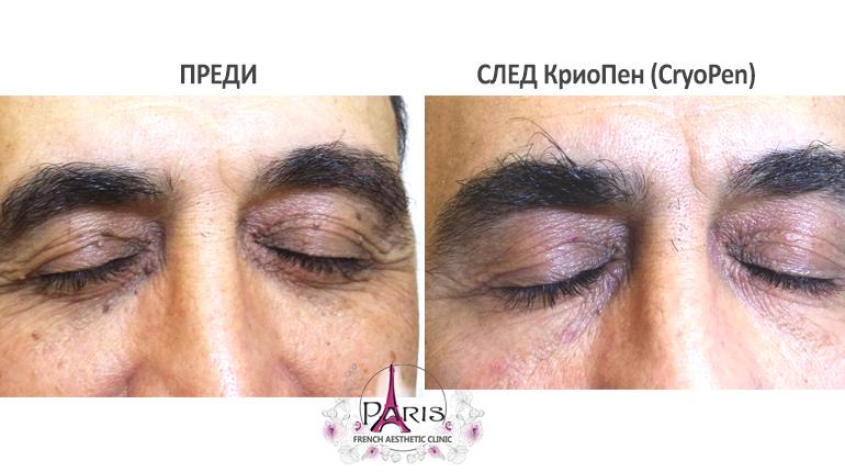 Колко време трае третирането на кожните образувания с Криопен?