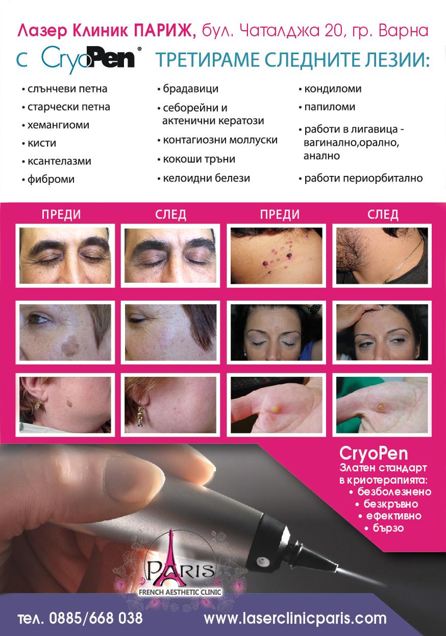 Криопен - Видове кожни образувания - Премахване на кожни образувания (лезии) с Криотерапия в Лазер Клиник Париж