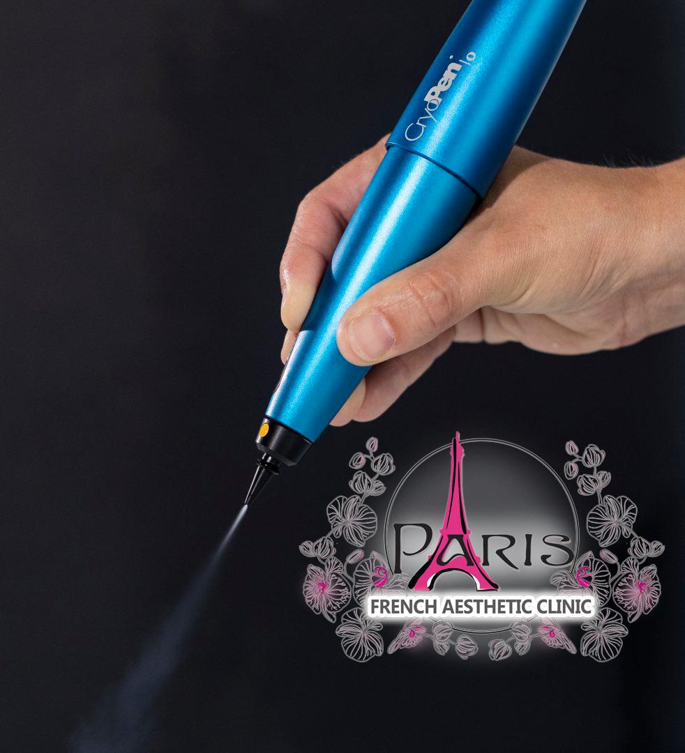 Криопен - Премахване на кожни образувания (лезии) с Криотерапия в Лазер Клиник Париж
