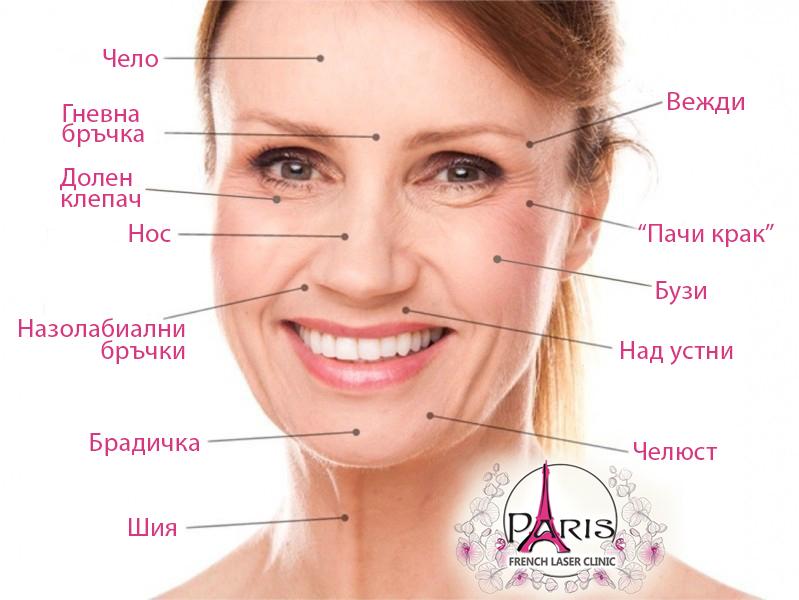 Поставяне на ботулинов токсин - Ботокс -Botox - Изглаждане на бръчките- Лазер Клиник Париж