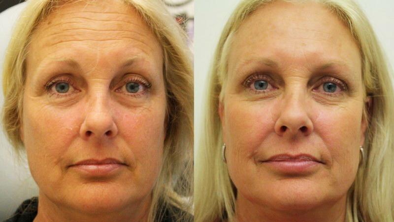 Поставяне на ботулинов токсин - Ботокс -Botox - Изглаждане на бръчките-преди и след- Лазер Клиник Париж