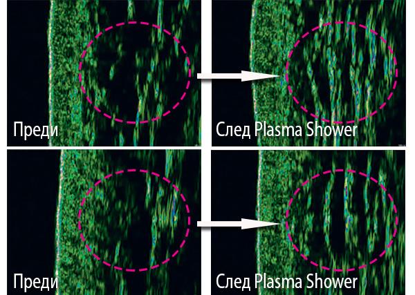 Уплътняване на дермата преди и след Плазма душ (Plasma Shower)