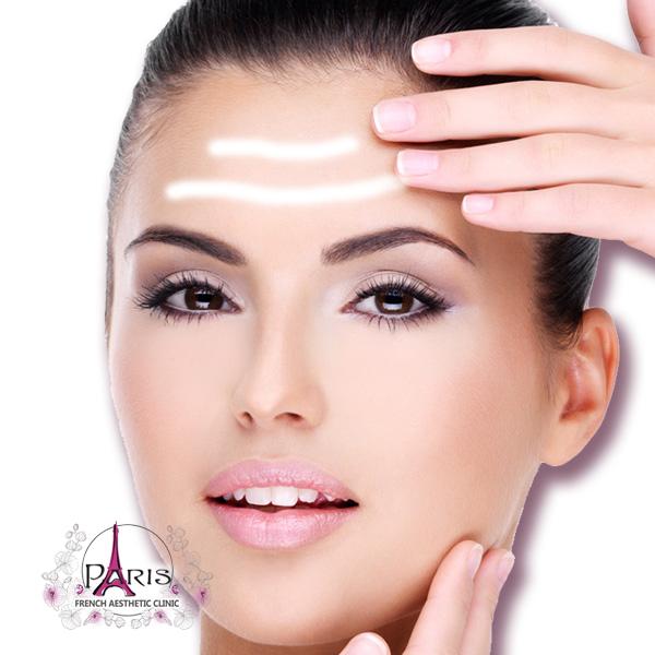 Корекция на фронтални бръчки на челото с хиалуронов филър - Лазер клиник ПАРИЖ