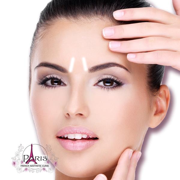 Корекция на гневни бръчки на челото с хиалуронов филър - Лазер клиник ПАРИЖ