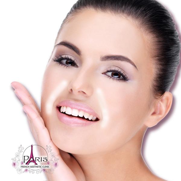 Корекция на назолабиални бръчки (около носа до устата) с хиалуронов филър - Лазер клиник ПАРИЖ