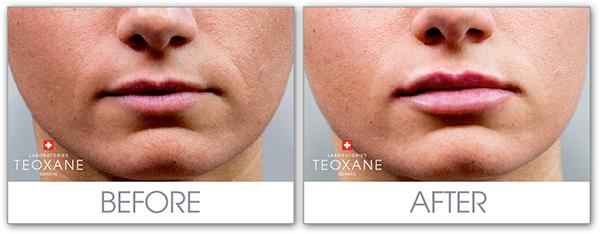 Уголемяване на устни с Teosyal Kiss - Лазер Клиник Париж