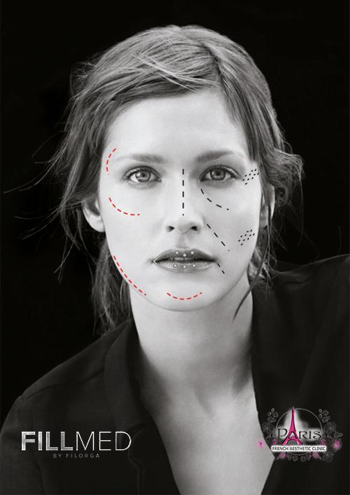 Корекция на бръчки с Art Filler Fillmed Filorga - Лазер Клиник ПАРИЖ