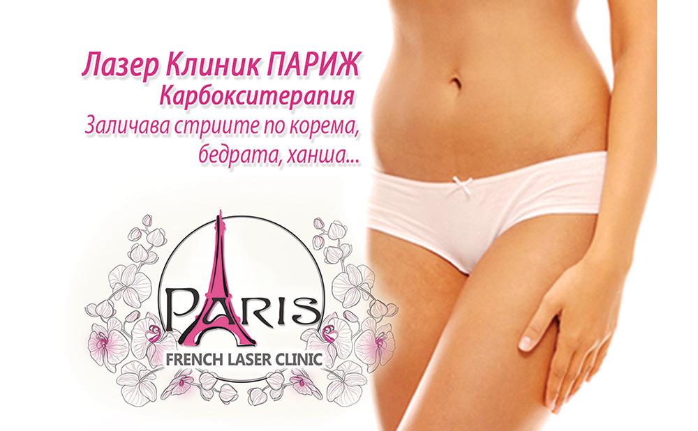 Лечение на стрии с Карбокситерапия - Лазер Клиник Париж