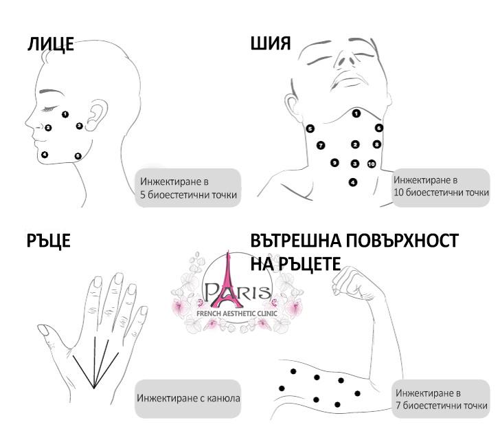 PROFHILO Профило - Техника на инжектиране - лице и тяло - Лазер Клиник Париж