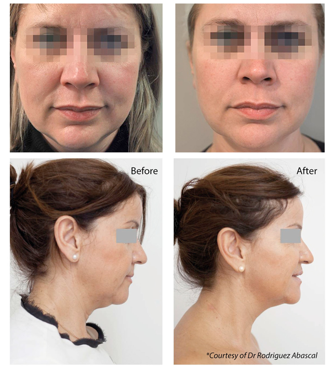 Profhilo | Профило - Биоремоделиране на лице, шия, деколте, тяло - Преди и след - Лазер Клиник Париж