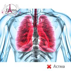 Озон терапия против астма