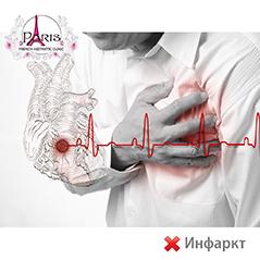 Озон терапия против инфаркт или след прекаран инфаркт (сърдечен удар)