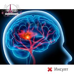 Озон терапия против инсулт или след прекаран инсулт (мозъчен удар)