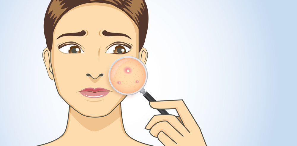 Озон терапия при в естетичната медицина